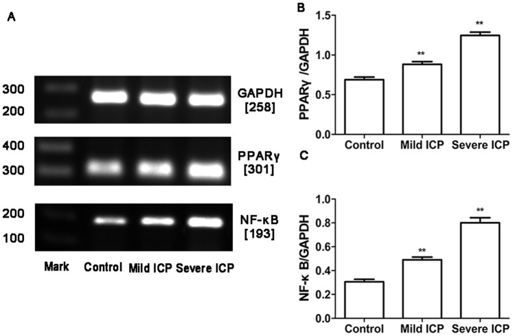 Expression of PPARγ and NF-κB mRNA in placentas from control group and ICP groups. (A) RT-PCR analysis of placental PPARγ and NF-κB mRNAexpression in control, mild ICP and sever ICP groups. (B) Graphical summary of data on the expression of PPARγ mRNA. (C) Graphical summary of data on the expression of NF-κB mRNA. The data are expressed as the mean ± S.D., ** p
