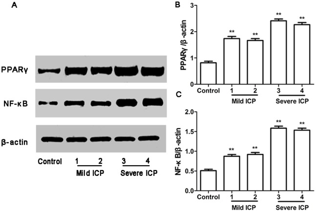 Expression of PPARγ and NF-κB protein in placentas from control group and ICP groups. (A) Western blotting analysis of placental PPARγ and NF-κB protein expression in control, mild ICP and sever ICP groups. (B) Graphical summary of data on the expression of PPARγ protein. (C) Graphical summary of data on the expression of NF-κB protein. The data are expressed as the mean ± S.D., ** p