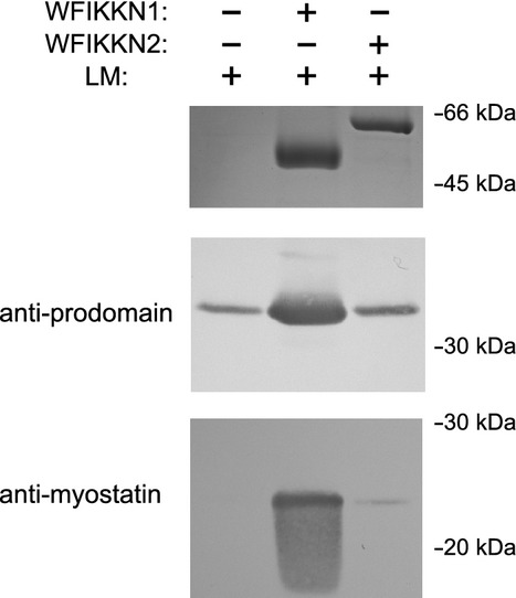 Latent myostatin binds WFIKKN1 but not WFIKKN2. In Ni 2+ -affinity pull-down assays, 1 μ m latent myostatin was incubated for 1 h with 2 μ m His-tagged WFIKKN1 or 2 μ m His-tagged WFIKKN2 in NaCl/P i containing 50 m m imidazole, 0.1% Tween-20 and 100 μ m <t>phenylmethanesulfonyl</t> fluoride (pH 7.5), and the solutions were then mixed with 20 μL of Ni 2+ –nitrilotriacetic acid resin. After 15 min of agitation, the resin was washed with NaCl/P i , 50 m m imidazole, 0.5% Tween-20 and 100 μ m phenylmethanesulfonyl fluoride (pH 7.5), and the bound proteins were eluted with NaCl/P i and 500 m m imidazole (pH 7.5). The eluted samples were analyzed by SDS/PAGE, and the proteins were visualized by staining with Coomassie Brilliant Blue and by western blotting with specific antibodies against myostatin prodomain (anti-prodomain) and against mature myostatin (anti-myostatin). LM, latent myostatin. The numbers indicate the molecular mass values of proteins of the Low Molecular Weight Calibration Kit. In the upper panel, the proteins were visualized by staining with Coomassie Brilliant Blue; in the lower panels, the proteins were visualized by western blotting.