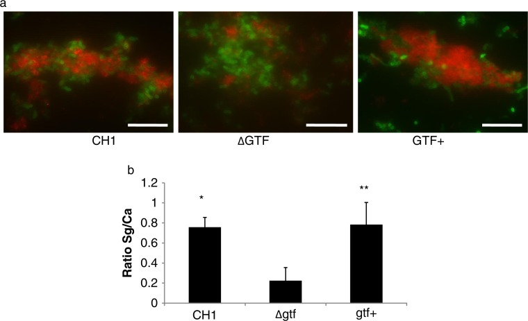 A gtfG deletion mutant has an attenuated C. albicans biofilm binding phenotype. S. gordonii CH1 wild type, mutant and complemented gtfG strains were tested in their ability to adhere to a preformed 4 h C. albicans biofilm in saliva-supplemented media. Panel (a) depicts S. gordonii wild type (CH1), mutant (ΔGtf) and complemented (Gtf+) (red) strains binding to C. albicans (green), after immuno-FISH staining. Bar=50 µm. Panel (b) depicts the mean ratio of red/green fluorescence signal in eight microscopic fields per condition, set up in duplicate, after image J quantification. *p=0.0003 and **p=0.04, for a comparison with wild type and complemented strains, respectively.