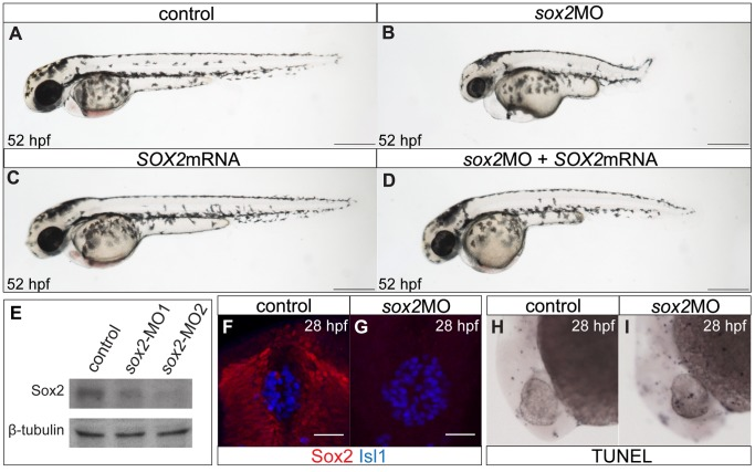 The zebrafish sox2 morphant model. ( A ) Lateral view of control embryo at 52 hpf. ( B ) sox2 morphants have small eyes and short body axis in relation to control siblings. ( C ) Microinjections with SOX2 mRNA have no phenotypic effect, while ( D ) mRNA injections into sox2 morphants rescue the phenotypes. ( E ) Western blot showing the reduction in the levels of Sox2 in embryos injected with sox2 -MO1 (second column) and sox2 -MO2 (third column), when compared to controls (first column). β-tubulin was used as loading control. ( F ) Whole mount immunofluorescence for Sox2 (red) and <t>Isl1</t> (blue) shows that Sox2 is expressed in the epithalamus, but not in the differentiated pineal cells at 28 hpf. ( G ) Sox2 is undetectable by immunofluorescence in sox2 morphants, at 28 hpf. ( H–I ) Morpholino microinjections do not grately affect apoptosis, as judged by TUNEL assay at 28 hpf. ( A–D ) scale bars = 250 µm, ( F–G ) scale bars = 25 µm. See also Figure S1 .
