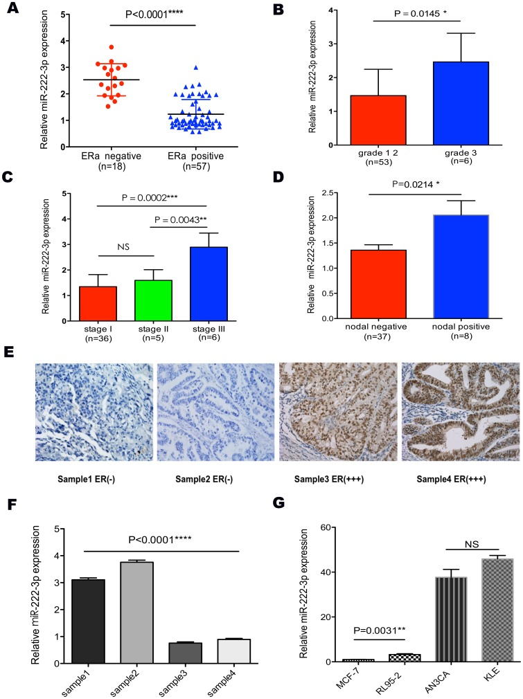 """The expression of miR-222-3p correlated with ERα and clinicopathological parameters in endometrial carcinoma. (A) MiR-222-3p expression level was much higher in ERα-negative ECs than in ERα-positive samples. (B, C and D) Expression of miR-222-3p across different grades, stages and nodal metastasis status. MiR-222-3p expression level was positively correlated with poor clinicopathological parameters. (E and F) MiR-222-3p and ERα expression were inversely related in ECs and normal endometrium tissues. These tissues were analyzed for miR-222-3p expression by TaqMan based qRT-PCR, followed by immunohistochemistry for ERα as described in """" Materials and Methods """". (G) Expression of miR-222-3p in cells with different ERα status. MCF-7 and RL95-2 cells were ERα-positive, while KLE and AN3CA cells were ERα-negative. Conversely, miR-222-3p expression was negative-related with ERα status. Bars are standard deviation (SD). The experiments were repeated three times. ** P"""