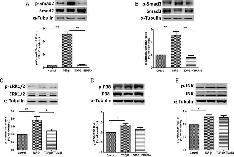 KCa3.1 mediated TGF-β1-induced activation of renal cortical fibroblasts and fibrotic responses through Smad and ERK pathway but not P38 and JNK pathways. Human renal interstitial fibroblasts were treated with control, TGF-β1 (2 ng/mL) or TGF-β1 (2 ng/mL) combined with TRAM34 (2 μM) for 48 h. Western blot results showed that TRAM34 inhibited the TGF-β1-mediated increases in p-Smad2 ( A ), p-Smad3 ( B ) expression and p-ERK1/2 expression ( C ). However, TRAM34 had no effect on the P38 ( D ) and JNK ( E ) MAP kinase pathways. Results are presented as means ± SEM. *P