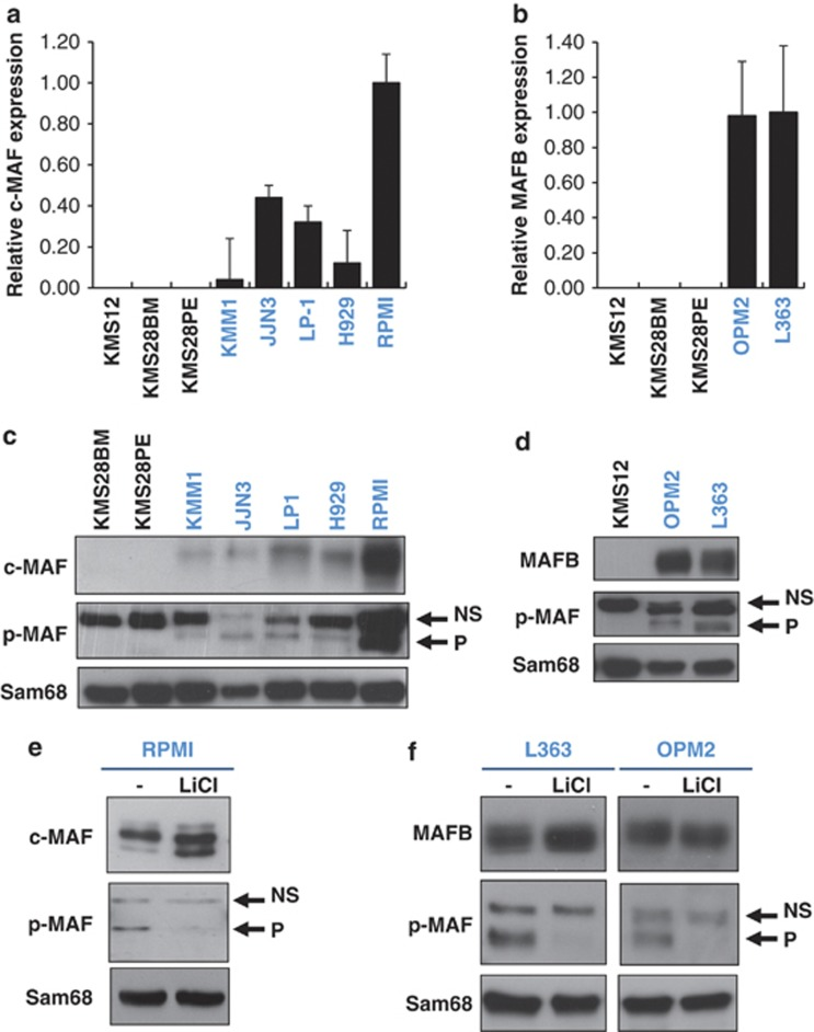 MAFB and c-MAF are phosphorylated by GSK3 in MM. Relative c-MAF ( a ) and MAFB ( b ) expression in MM cell lines (HMCLs) was determined by RT-qPCR. HMCL's nuclear extracts were analysed by western blot using c-MAF ( c ) and MAFB ( d ) antibodies, p-MAF and SAM68 antibodies. c-MAF ( e ) and MAFB ( f ) expressing cell lines were treated with LiCl as indicated. Anti-c-MAF, anti-MAFB, p-MAF and SAM68 western blots were carried out on nuclear extracts. NS, non-specific; P, phosphorylated forms.