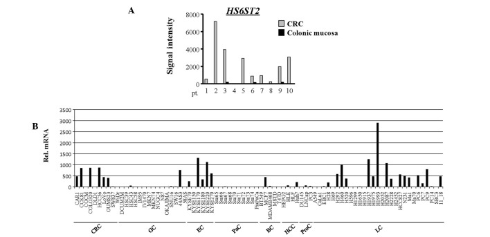 mRNA expression levels of heparan sulfate 6- O -sulfotransferase 2 ( HS6ST2 ) in 10 paired colorectal cancer (CRC) and non-cancerous colonic mucosal samples and in various cancer cell lines. (A) Signal intensities of HS6ST2 were obtained from a microarray analysis. HS6ST2 was overexpressed in CRC (gray bars) compared to the paired mucosal samples (black bars) in almost all the patients. (B) The mRNA expression levels of HS6ST2 were assessed using quantitative reverse transcription-polymerase chain reaction in a panel of 83 cancer cell lines. Pt, patient number; Rel. mRNA, normalized mRNA expression levels ( HS6ST2/GAPD × 10 6 ); GC, gastric cancer; EC, esophageal cancer; PaC, pancreatic cancer; BC, breast cancer; HCC, hepatocellular carcinoma; ProC, prostate cancer; LC, lung cancer.