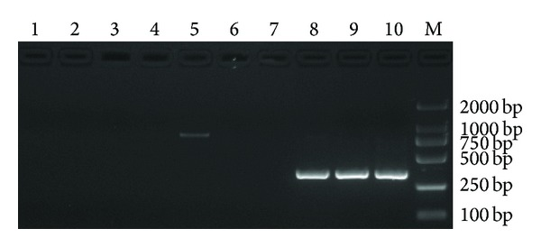 Sensitivity of the nested PCR assay. 1–5: the first PCR products; 6–10: the second PCR products. 1, 6: negative control; 2, 7: 10 −4 dilution; 3, 8: 10 −3 dilution. 4, 9: 10 −2 dilution; 5, 10: 10 −1 dilution; M: DL2000 DNA marker.