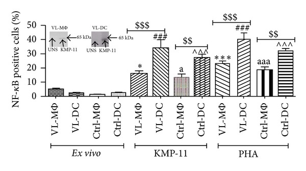 Differential NF- κ B pattern after stimulation with KMP-11 in APCs of VL patients and healthy controls. The capacity of moDCs and MΦs for the activation of NF- κ B was compared through intracellular staining using fluorescent conjugated anti-NF- κ B antibodies on flow cytometry. Following stimulations (KMP-11 and PHA), cells were harvested and then incubated with PE-anti-p65 NF- κ B antibodies, acquired and analyzed on FACS Calibur. Total amount of NF- κ B was produced by MΦ and moDC stimulated and unstimulated with rKMP-11 evaluated through FACS calibur. Immunoblotting of VL MΦ and VL DCs (insert, Figure 5 ) with NF- κ B antibody shows that KMP-11 triggered significant phosphorylation of a protein migrating at 65 kDa of NF- κ B. There was no significant difference observed between DC-Ctrl and VL-DC of respective groups. * P