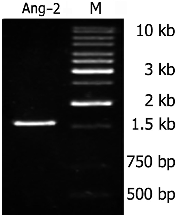 Presence of Ang-2 RNA by qPCR. Lane M, marker, GeneRuler 1 kb DNA Ladder. The band of Ang-2 was observed at the predicted location on the gel. Ang-2, angiopoietin-2; qPCR, quantitative PCR.