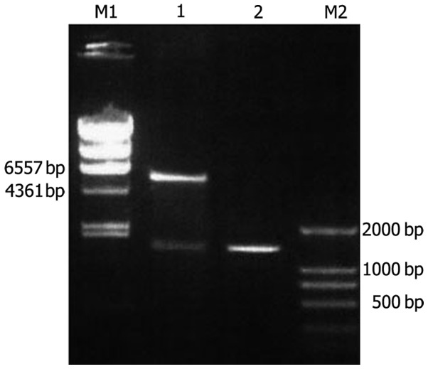 Electrophoresis of recombinant plasmid DNA. Agarose gel (0.8%) showing the results of PCR and the digested clone fragments. Lanes: M1, λDNA/ Hin dIII DNA marker; 1, digested clone fragments of pET32c-Ang-2 plasmid; 2, Ang-2 gene; M2, DL2000 DNA marker. Ang-2, angiopoietin-2.