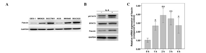 Fascin and STAT3 are upregulated by IL-6 in MKN45 cells. (A) Fascin expression of five GC cell lines and the GES-1 cell line was determined by western blotting. (B) MKN45 cells were treated with IL-6 for 1 h and the expression levels of fascin, total STAT3 and pSTAT3 (Tyr705) were detected using western blotting. (C) Quantitative polymerase chain reaction analysis measured fascin mRNA levels in MKN45 cells treated with IL-6 for 1, 2, 3 or 4 h. Results were standardized to GAPDH and shown relative to the untreated sample. Results represent three independent experiments performed in triplicate. STAT3, signal transducer and activator of transcription 3; pSTAT3, phosphotyrosine STAT3; IL-6, interleukin-6; GC, gastric carcinoma. * P