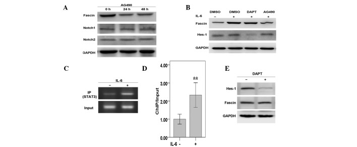 Fascin is directly regulated by STAT3 in response to IL-6 in MKN45 cells. (A) Western blotting was performed to assess protein levels of fascin, Notch1 and Notch2 in MKN45 cells treated with 50 μM AG490 for 24–48 h. (B) Cells were incubated with IL-6 and/or AG490/DAPT and western blotting was performed. (C) Cells were incubated with IL-6 and ChIP assays were performed with STAT3 antibody and primers flanking a potential STAT3 site in the human fascin promoter. (D) Results from (C) were quantitated by densitometry and expressed as ChIP/input with the untreated sample. (E) The Hes-1 and fascin expression levels in MKN45 cells treated with DAPT were assessed by western blotting. Results represent three independent experiments performed in triplicate. ** P
