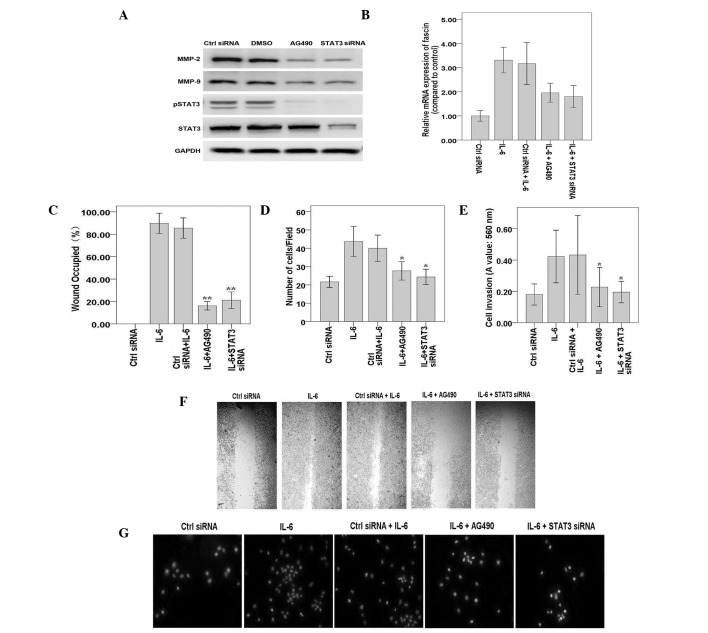 STAT3 is required for IL-6-induced expression of fascin and cell migration in MKN45 cells. (A) MKN45 cells were transfected with STAT3 siRNA or treated with AG490 and cultured for 24 h. Whole cell extracts were subjected to western blotting with antibodies against pSTAT3, total STAT3, MMP-2 and -9 and GAPDH. MKN45 cells were treated with IL-6 for 30 min. (B) MKN45 cells were transfected with STAT3 siRNA or treated with AG490 and cultured for 3 days prior to treatment with IL-6 for 30 min. mRNA levels of fascin were detected by quantitative polymerase chain reaction. Results were standardized to GAPDH and expressed as fold induction of IL-6-treated cells from three independent experiments. (C) MKN45 cells were treated as described and wound healing assays were performed. The percentage of the wound occupied in three independent experiments was calculated. (D) MKN45 cells were treated as described and cell migration assays were performed. The mean number of migrated cells in at least 5 visual fields of 3 independent experiments was calculated. (E) MKN45 cells were treated as described and cell invasion assays were performed. Invaded cells were stained and eluted for absorbance readings at 560 nm. (F) Representative experiments of wound healing assays are shown (magnification, ×100). (G) Representative experiments of cell migration assays are shown (magnification, ×100). * P