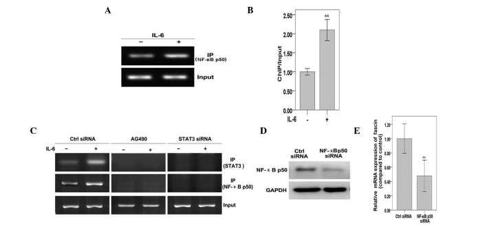 NF-κB binds to the <t>fascin</t> promoter in response to IL-6 in a STAT3-dependent manner. (A) MKN45 cells were treated with IL-6 for 30 min and ChIP assays were performed with an NF-κB antibody and primers flanking the potential NF-κB binding site. (B) Results from (A) were quantitated by densitometry and expressed as ChIP/input with the untreated sample. (C) MKN45 cells were transfected with STAT3 siRNA or AG490 and cultured for 3 days. Cells were treated with IL-6 for 30 min and ChIP assays were performed with STAT3 or NF-κB antibodies and primers flanking the potential STAT3/NF-κB binding sites. (D) MKN45 cells were transfected with NF-κB <t>p50</t> siRNA and cultured for 4 days. Whole cell extracts were prepared and western blotting was performed with antibodies against NF-κB p50 and GAPDH. (E) MKN45 cells transfected with control or NF-κB p50 siRNA were treated with IL-6 for 30 min. RNA was subjected to quantitative polymerase chain reaction for fascin and GAPDH. Results were standardized to GAPDH and expressed as fold induction with control siRNA. Values represent the mean ± standard deviation. ** P