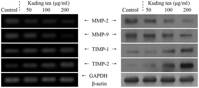 Effects of various concentrations of Kuding tea on the mRNA (left) and protein (right) expression levels of MMPs and TIMPs in human tongue carcinoma TCA8113 cells.