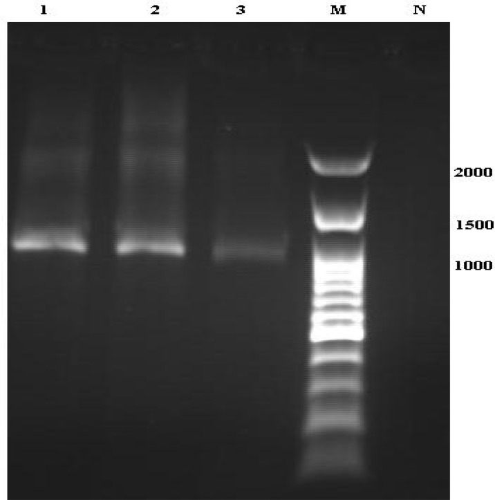 Electrophoresis of PCR product of Sarcocystis isolated from goat and calf in northern Iran. Lanes: 1 2, Sarcocystis isolated from goat; 3, Sarcocystis isolated from calf muscle sample; M, 100 bp ladder DNA size marker; and N, negative control