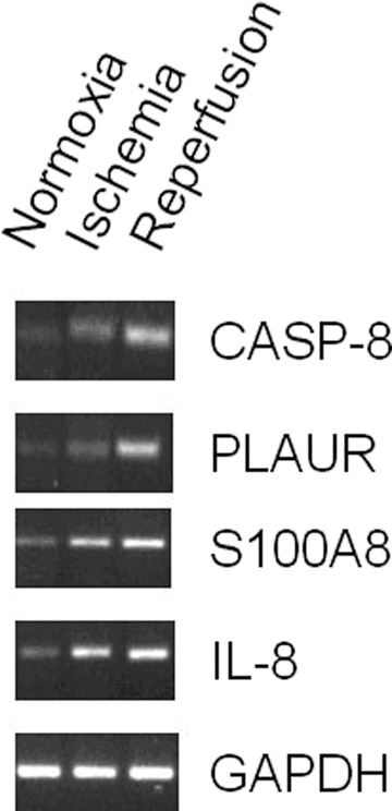 Exemplary DNA gel electrophoresis of real-time-quantitative-PCR product of patient 1.