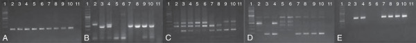 Amplicons of markers wri1 , wri2, wri3, wri4 and wri5 separated by agarose gel electrophoresis. (A) wri1 , (B) wri2, (C) wri3, (D) wri4, (E) wri5, (1) GeneRuler® 100 bp DNA ladder (Thermo Fisher Scientific Inc.), (2) Excalibur, (3) Kukri, (4) 1:1 mixture of Excalibur and Kukri DNA (artificial heterozygote), the Chinese Spring nullisomic-tetrasomic lines (5) CS N7A-T7B, (6) CS N7A-T7D, (7) CS N7B-T7A, (8) CS N7B-T7D, (9) CS N7D-T7A, (10) CS N7D-T7B and (11) water.