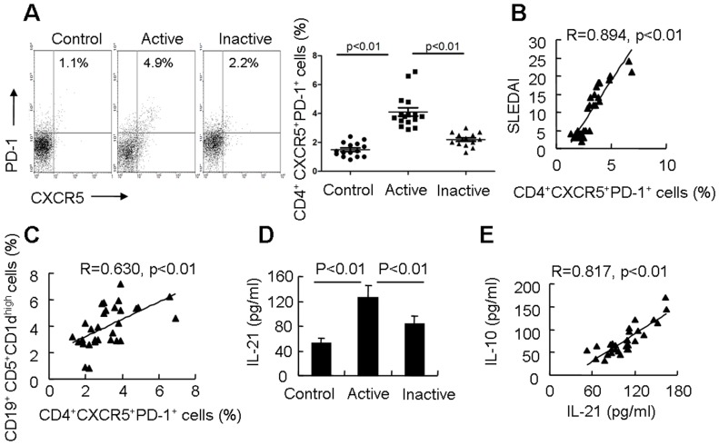 Tfh cells are associated with expansion of Breg cells in SLE patients. (A) Human PBMCs were labeled with lymphocyte-specific antibodies (CD4, CXCR5 and PD-1). The percentage of CXCR5 + PD-1 + cells among CD4 + T cells was analyzed by flow cytometry (left). Results of flow cytometric analysis of Tfh cells (right) in patients with active SLE (n = 16), patients with inactive SLE (n = 14), and control subject (n = 15). (B) A positive correlation between the proportion of CXCR5 + PD-1 + cells among CD4 + T cells and the clinical severity of the flare as scored using the SLEDAI (n = 30) was noted. (C) A positive correlation between the proportion of CD4 + CXCR5 + PD-1 + T cells and CD19 + CD5 + CD1d high B cells in PBMCs from SLE patients (n = 30) was observed. (D) Serum IL-21 levels were detected in patients with active SLE (n = 16), patients with inactive SLE (n = 14), and control subject (n = 15) by ELISA. (E) A positive correlation between serum IL-10 levels and IL-21 levels in SLE patients (n = 30) was observed.