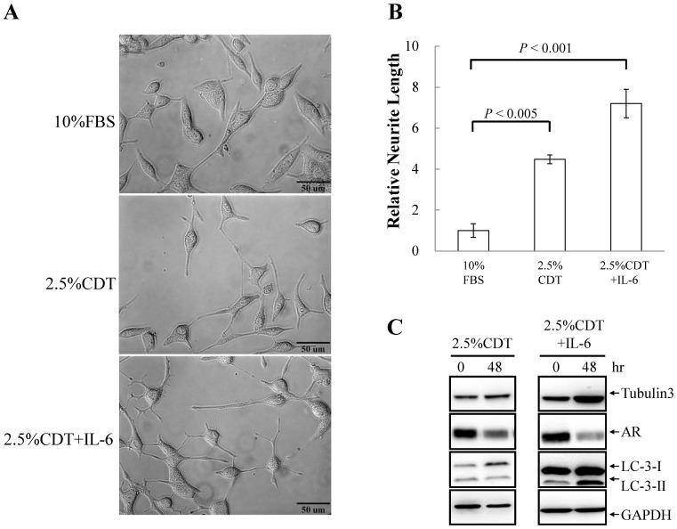 IL-6 induces NED in LNCaP cells and this is concomitant with increased autophagy. (A) LNCaP cells were treated with 2.5% CDT or 2.5% CDT plus 100 ng/ml IL-6 for 48 hours. The induced neurite elongation was assessed using brightfield microscopy images (40× magnification). (B) The neurite elongation was quantified using the average from 3–5 microscopic fields; bars , SD. (C) LNCaP cells were treated as described in (A). Total cell lysates (TCLs) were prepared and then immunoblotted to detect tubulin III, androgen receptor (AR) and LC3. GAPDH was used as the loading control.