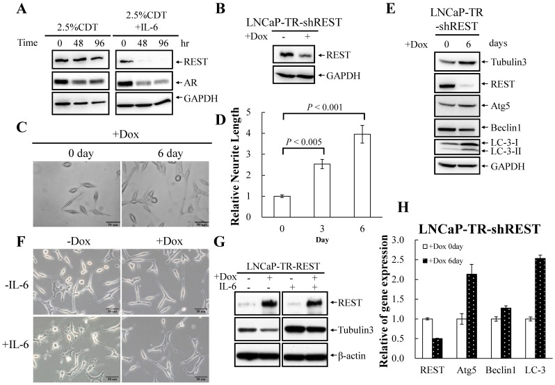 Regulation of NED by REST in LNCaP cells. (A) The level of REST protein declines during IL-6 treatment. LNCaP cells were treated with 100 ng/ml IL-6 for 48 and 96 hours. The expression level of REST was analyzed by immunoblotting using anti-REST antibody. GAPDH was used as the loading control. (B) LNCaP-TR-shREST cells were treated with or without Dox for 48 hours. TCLs were analyzed by immunoblotting using anti-REST antibody. (C) LNCaP-TR-shREST cells were treated with Dox for 6 days. The promotion of neurite outgrowth by REST knockdown was assessed using brightfield microscopy images (40× magnification). (D) The neurite elongation was quantified using the average from 3–5 microscopic fields; bars , SD. (E) LNCaP-TR-shREST cells were treated as described in (C). TCLs were prepared and analyzed by immunoblotting using the antibodies as indicated. (F) LNCaP-TR-REST cells were treated with 1 µg/ml Dox in the absence (control) or presence of 100 ng/ml IL-6 for 4 days. Inhibition of IL-6-induced neurite outgrowth by REST overexpression was assessed using brightfield microscopy images (40× magnification). (G) TCLs were obtained from LNCaP-TR-REST cells treated as described in (F); these were then analyzed by immunoblotting using the indicated antibodies. (H) RT-qPCR analysis of total RNA isolated from LNCaP-TR-shREST cells treated as described in (C). The relative mRNA levels of REST, Atg5, beclin1 and LC3 were normalized against GAPDH. Values from three independent data points are reported as mean±S.D.