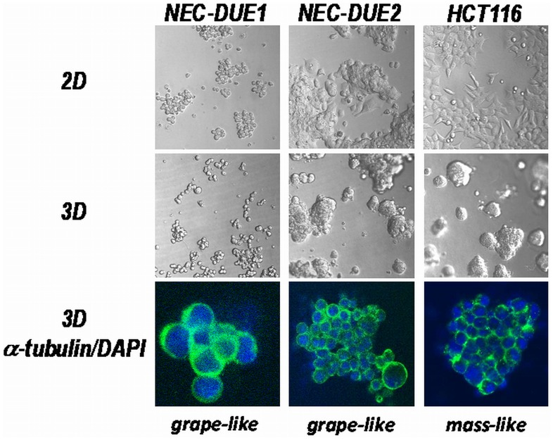 2D and 3D growth pattern of large-cell NEC cell lines. NEC-DUE1 and –DUE2 were cultivated in 2D (upper panel) or 3D culture systems (middle panel). The colon cancer cell line HCT116 served as control. Spheroids were grown in lrECM 3D microenvironments for seven days. Confocal laser scanning fluorescence microscopy images of isolated 3D spheroids (lower panel) stained with <t>beta-actin</t> (green) and DAPI (blue) revealed a grape-like growth pattern for both NEC cell lines.