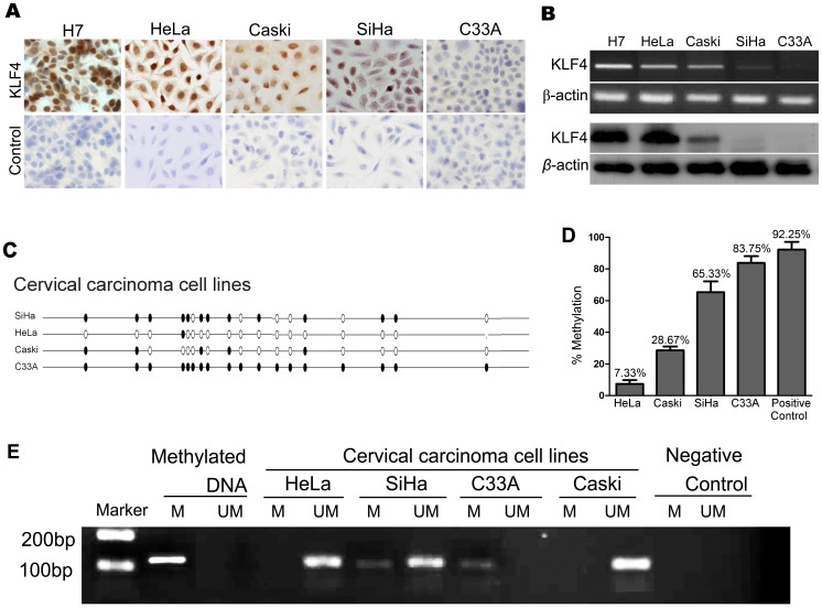 Methylation of the KLF4 promoter in cervical cancer cell lines. (A and B) KLF4 expression in the 4 cervical cancer cell-lines HeLa, CaSki, SiHa and C33A was detected by IHC (A) and by <t>PCR</t> and western blot (B). We applied the human embryonic stem cell line H7 as a positive control and the rabbit IgG polyclonal antibody as the isotype control in immunocytochemistry. (C) Bisulfite sequencing of the KLF4 promoter in cervical cancer cell-lines. (D) Statistical analysis of KLF4 promoter methylation in cervical cancer cell-lines. (E) MS-PCR for a region of the KLF4 promoter in the 4 cervical cancer cell lines. A methylated band was amplified in SiHa and C33A cells. Globally methylated <t>DNA</t> from normal fetal cord blood samples was included as a positive control for the methylated (M) and unmethylated (U) primers.