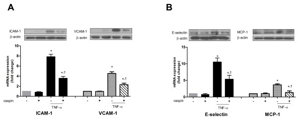 Vaspin inhibits TNFα-induced expression of adhesion molecules. The effect of vaspin on TNFα-induced expression of ICAM-1 (A) , VCAM-1 (A) , E-selectin (B) , and MCP-1 (B) . The protein level and mRNA expression of each adhesion molecule was measured at 24 hr after treatment with 100 ng/mL vaspin in the presence or absence of 10 ng/mL TNFα. Data shown are representative Western blots (top panels) and mean values ± SEM of three independent experiments (bottom panels). The fold change in mRNA expression compared to levels in untreated cells is shown. * p