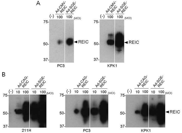 (A) The REIC/Dkk-3 expression levels after transfection at 100 MOI with CMV promoter-driven adenoviral vectors (Ad-CMV-REIC and Ad-SGE-REIC) were compared by western blot analysis in PC3 and KPK1 human cancer cells. (B) The REIC/Dkk-3 expression levels after transfection at 10 MOI and 100 MOI with Ad-CAG-REIC and Ad-SGE-REIC were compared by western blot analysis in 211H, PC3 and KPK1 human cancer cells. SGE, super gene expression; REIC, reduced expression in immortalized cells; CMV, cytomegalovirus; Dkk-3, Dickkopf-3; MOI, multiplicity of infection.