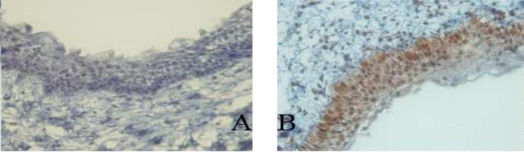 Immunohistochemical expression of p53 (A) and PCNA (B) in dentigerous cyst (400X) (400X).
