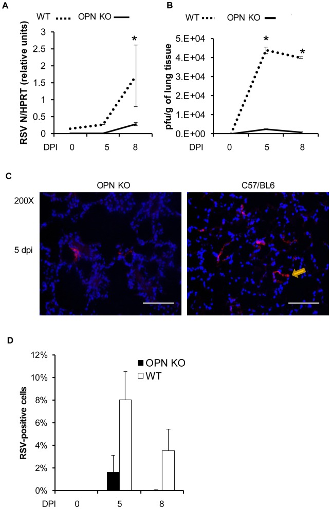 OPN-/- mice are protected from RSV infections. WT C57BL/6 and OPN-/- mice were intranasally infection with a high dose of mucogenic rA2-L19F (1×10 6 pfu/mouse, n = 4) or a mock-inoculum, and at 5 and 8 dpi tissues were harvested. Total experiment was performed in triplicate, with data represented as means ±SEM. (A) Total lung RNA was analyzed with qRT-PCR for gene expression of RSV N and displayed as arbitrary relative units. (B) Plaques were obtained from the lung homogenates of infected mice at 5 and 8 dpi. (C) Lung sections (5 µm) were stained for the presence of RSV antigens using a polyclonal antibody and Alexa Fluor 555-secondary antibody and appears as red, while DAPI-stained nuclei appear blue. Images shown are representative of a minimum of 10 images collected at 200X magnification, all collected with identical exposure settings. (D) The number of RSV-positive cells was then calculated by ITCN ImageJ analysis, assuming differential diameters for quantifying the nuclei and individual cells. The percentage of RSV-positive cells is displayed as means ±SEM.