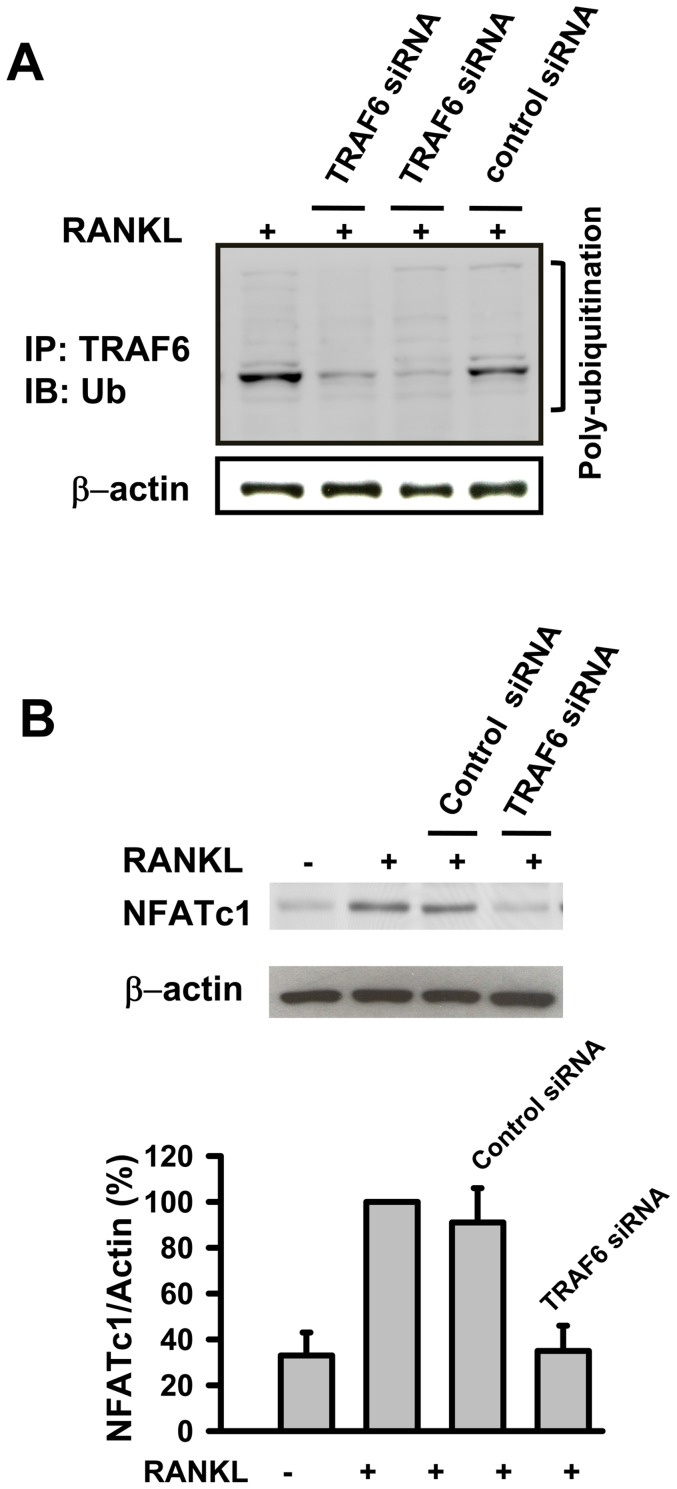 TRAF6 is poly-ubiquitinated after RANKL stimulation and RANKL-induced expression of NFATc1 in osteoclast differentiation is dependent on TRAF6. (A) RAW264.7 cells were stimulated with RANKL in the absence or presence of TRAF6 siRNA (the results represented are two separate experiments) or control siRNA. After incubation, cell lyses were immunoprecipitated with anti-TRAF6 antibody. Bound proteins were further immunoblotted with anti-ubiquitin or anti-β-actin as described in methods. (B) RAW264.7 cells were stimulated with RANKL in the presence or absence of TRAF6 siRNA or control siRNA. After stimulation, cells lysates were immunoblotted with anti-NFATc1 or anti-β-actin antibodies. Results are expressed as the mean ± SEM for each group from three to four separate experiments. **p
