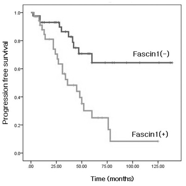 Kaplan-Meier survival analysis of progression-free survival in all patients according to fascin1 expression. Significant differences among the subgroups with positive (dimed line) and negative (bold line) fascin1 expression indicate poor outcomes in patients with fascin1 expression group. Fascin1 expression group was significantly correlated with shorter progression-free survival (P