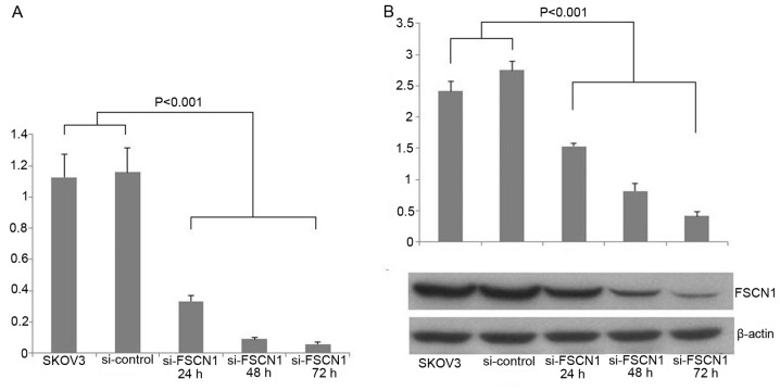 Fascin1 expression after siRNA transfection. (A) Real-time PCR analysis revealed the fascin1 expression was inhibited in the cancer cells transfected with fascin1 siRNA compared with control cancer cells (P