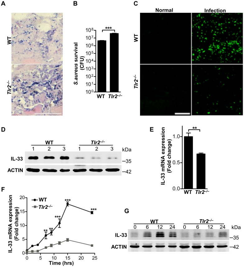 TLR2 is required for Staphylococcus aureus to induce IL-33. ( A ) Gram-positive staining of mouse skin infected with S.aureus . Scale bar represents 50 µm. ( B ) Local S.aureus survival in skin lesions at day-3 post-infection. (C) Immunofluorescent staining of IL-33 in wild-type and Tlr2 −/− mouse skin infected with S.aureus . This image is representative of six mice with abscess. Scale bar represents 50 µm. ( D ) Western blot of IL-33 in skin lesions caused by S.aureus infection at 3 days. 1, 2, 3 represent three mice of each group were used. ( E ) Quantification of IL-33 mRNA expression in skin of wild-type and Tlr2 −/− mice infected with S.aureus . ( F ) IL-33 mRNA expression in primary peritoneal macrophages from wild-type and Tlr2 −/− mice stimulated with 10 µg/ml PGN. ( G ) Western blot of IL-33 in primary peritoneal macrophages from wild-type and Tlr2 −/− mice stimulated with 10 µg/ml PGN for different times. **P
