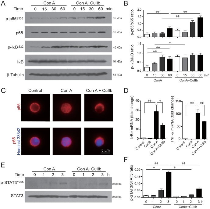 CuIIb modulated the NF-κB and STAT3 pathways in activated lymphocytes. Cells were pretreated with CuIIb (10 µM) for 1 h, then exposed to Con A for indicated time periods. The phosphorylation of NF-κB/p65, IκB (A) and STAT3 (E) at various time points was determined by Western blotting. β-Tubulin was used as a loading control. Representative western blots are shown in (A and E) and the relative densitometric ratios of each phosphorylated protein to its total protein are shown in (B and F). (C) Immunofluorescence analysis of the distribution of NF-κB/p65 in lymphocytes. After co-treatment with CuIIb and Con A for 1 h, cells were fixed and then immunostained with anti-p65 antibody (red) followed by CF568-labeled second antibody. Nuclei (blue) were revealed by Hochest 33342 staining. Fluorescent images were obtained by fluorescence microscopy with a 100× oil objective lens. Representative of at least 10 images for each group were shown. Scale bar, 5 µm. (D) Quantitative PCR analysis of the mRNA levels of IκBα and TNF-α. CuIIb were pretreated for 1 h prior to stimulation with Con A. Levels of IκBα and TNF-α mRNA were determined 3 h after Con A stimulation. The mRNA levels normalized to β-actin are expressed as mean ± SD with controls defined as 1 (n = 3). * P