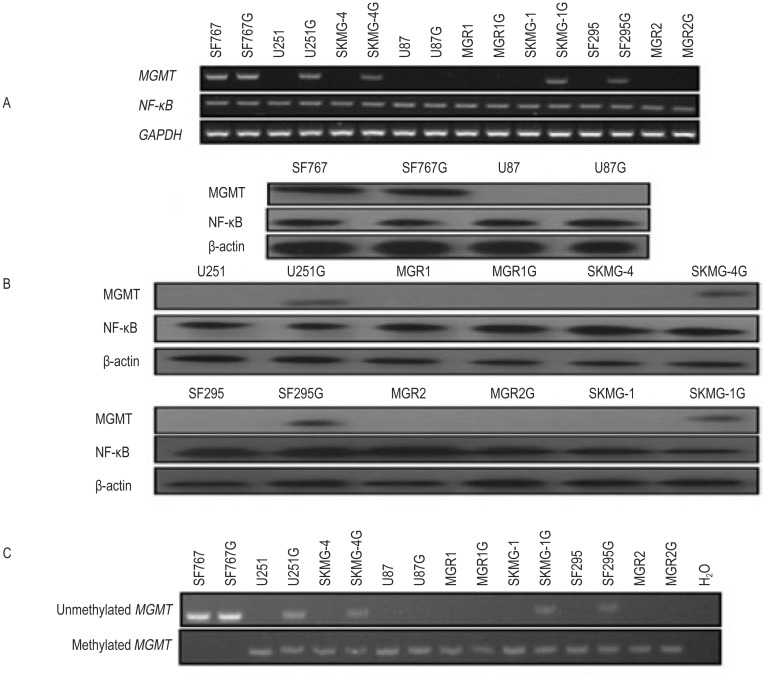 O 6 -methylguanine DNA methyltransferase (MGMT) and nuclear factor-κB (NF-κB) expression in the GSC lines and the parental glioma cell lines. A, reverse transcription-polymerase chain reaction (RT-PCR) shows that the glioma cell lines U251, SKMG-4, SF295, SKMG-1, U87, MGR1, and MGR2 are MGMT-negative, whereas the SF767 cell line is MGMT-positive. However, the GSC lines U251G, SKMG-4G, SF295G, SKMG-1G, and SF767G become MGMT-positive, whereas the U87G, MGR1G, and MGR2G lines remain MGMT-negative. Meanwhile, all GSC lines and their parental glioma cell lines displayed high NF-κB expression. B, the Western blotting data are consistent with the RT-PCR results. C, methylation-specific polymerase chain reaction (MSP) shows MGMT promoter methylation in all GSC lines and their parental glioma cell lines except for the SF767 and SF767G lines. In addition, unmethylated MGMT promoters exist in the glioma cell line SF767 and the GSC lines SF767G, U251G, SKMG-4G, SKMG-1G, and SF295G; H 2 O was used as the blank control.