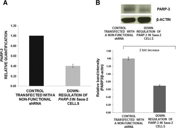 PARP3 mRNA expression and protein levels in Saos-2 cells after <t>transfection.</t> (A) Analysis of PARP3 expression levels by qRT-PCR, after <t>shRNA</t> transfection (data are the average of triplicate experiments, media ± standard error). (B) Western-blot assay for testing PARP3 protein levels in Saos-2 cell line (bars are the average of three experiments, media ± standard error).