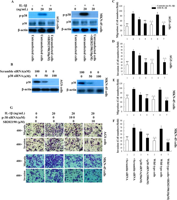 IL-1β promotes GA cell migration and invasion by activating p38. A : Western blots confirmed that p-p38 could be induced by 30 min stimulation with IL-1β in AGS and MKN-45 cell lines; the activation of p38 by IL-1β was inhibited by p38 inhibitor SB202190. B : Transfection of p38 siRNA knocked down p38 expression in both the two GA cell lines. C-F : Treatment of GA cells with IL-1β increased cell migration and invasion in vitro; these effects were inhibited by p38 siRNA or the p38 pathway inhibitor SB202190. ** P