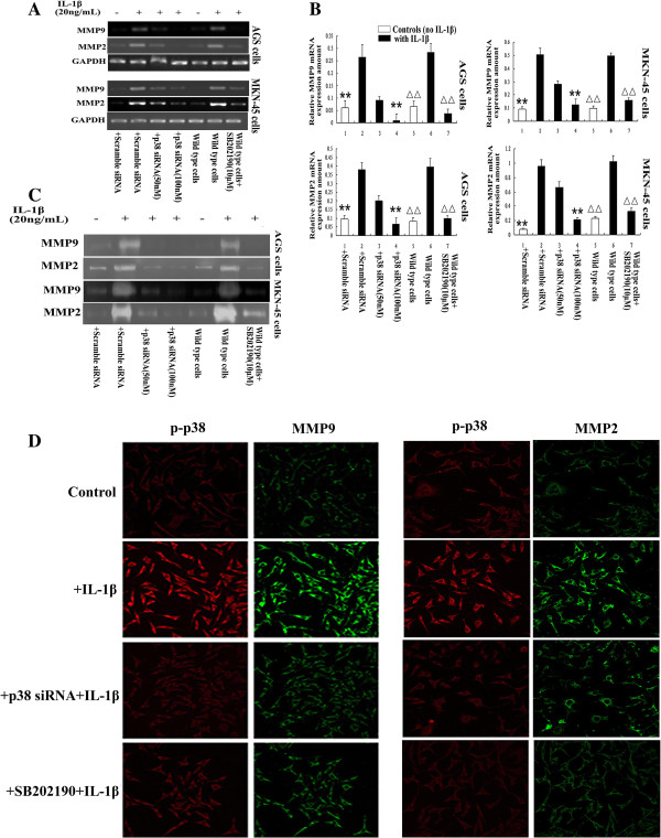IL-1β upregulates MMP2 and MMP9 expression and activity by activating <t>p38.</t> A : RT-PCR analysis showed that MMP2 and MMP9 mRNA were upregulated in both AGS and MKN-45 cells in response to treatment with IL-1β; this effect was blocked by p38 <t>siRNA</t> or the p38 inhibitor SB202190. B : Quantification of the expression of MMP2 and MMP9 mRNA normalized to GAPDH mRNA. ** P