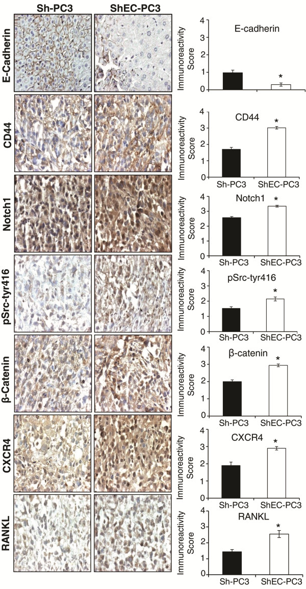 Expression of stemness, EMT, and bone metastasis biomarkers in Sh-PC3 and ShEC-PC3 xenograft tissues . Sh-PC3 and ShEC-PC3 xenograft tissues were analyzed for the expression of E-cadherin, CD44, Notch1, pSrc-tyr416, β-catenin, CXCR4 and RANKL by IHC as detailed in the methods. Immunoreactivity was analyzed in 5 random areas for each tumor tissue and was scored as 0+ (no staining), 1+ (weak staining), 2+ (moderate staining), 3+ (strong staining), 4+ (very strong staining). IHC scores (as mean ± SEM) are shown as bar diagram of 5–10 samples.