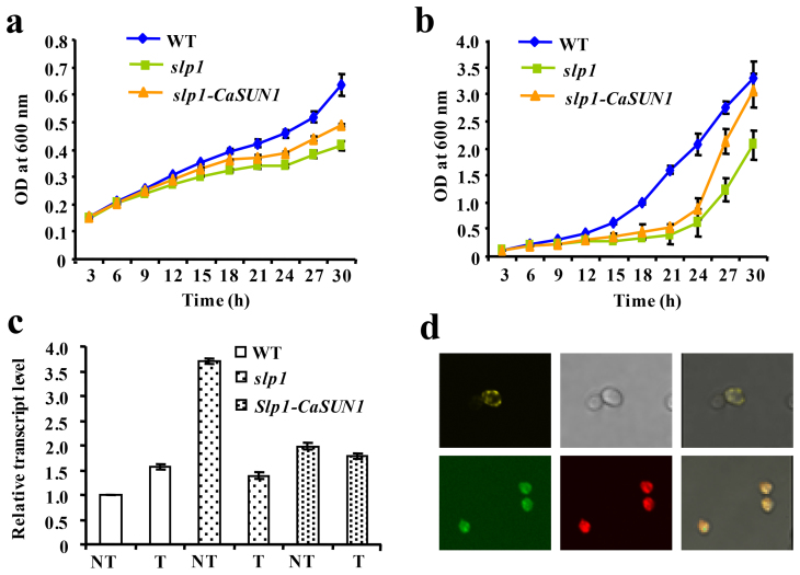 Functional complementation of slp1 mutant by CaSUN1. Wild-type (WT), slp1 mutant and slp1 -CaSUN1 cells were cultured in SD-Ura and SD-Gal/Raf-Ura media and subjected to DTT treatment. OD 600 was determined every 3 h and growth curves were constructed for (a) non-induced and (b) induced conditions. (c) Relative abundance of KAR2 was analyzed by qRT-PCR in wild-type, slp1 and slp1 -CaSUN1 cells, subjected to DTT treatment for 24 h. The values are mean ± SD (n = 3). NT represents untreated condition. (d) Confocal micrographs displaying fusion proteins of transformed cells pAG426GPD-CaSUN1-EYFP (upper panel) and co-localization of pAG426GPD-CaSUN1-EGFP and pSM1960-Sec63p-RFP (lower panel). The right panel represents the merged images.