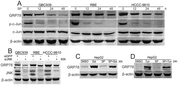 JNK maintains high levels of GRP78 in human CCA cells. (A) After treated with SP600125 (SP, 20 µM) for indicated time periods, GRP78 was analyzed using western blot in QBC939, RBE and HCCC-9810 cells. (B) After transfected with siJNK for 60 h, GRP78 was analyzed using western blot in QBC939, RBE and HCCC-9810 cells. (C) After treated with salubrinal (Sal, 25 µM) for 30 h with or without SP600125 (SP, 20 µM) preincubation for 1 h, GRP78 was analyzed using western blot in HepG2 cells. (D) After treated with tunicamycin (Tun, 2.0 µg/ml) for 24 h with or without SP600125 (SP, 20 µM) preincubation for 1 h, GRP78 was analyzed using western blot in HepG2 cells.