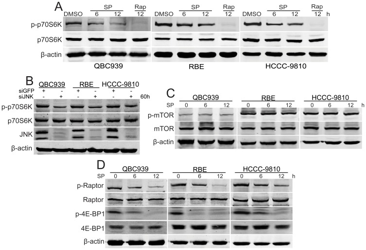 JNK promotes the activity of mTOR in human CCA cells. (A) After treated with SP600125 (SP, 20 µM) for indicated time periods, phosphorylated p70S6K in QBC939, RBE and HCCC-9810 cells was analyzed using western blot. Rapamycin (Rap, 20 nM)-treated cholangiocarcinoma cells were used as positive control. (B) After transfected with siJNK for 60 h, phosphorylated p70S6K in QBC939, RBE and HCCC-9810 cells was analyzed using western blot. (C) After treated with SP600125 (SP, 20 µM) for indicated time periods, phosphorylated mTOR in QBC939, RBE and HCCC-9810 cells was analyzed using western blot. (D) After treated with SP600125 (SP, 20 µM) for indicated time periods, phosphorylated Raptor and phosphorylated 4E-BP1 in QBC939, RBE and HCCC-9810 cells were analyzed using western blot.
