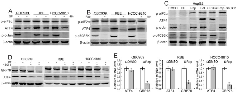 JNK/mTOR regulates GRP78 induction through ATF4 in human CCA cells. (A) After treated with SP600125 (SP, 20 µM) for 48 h, ATF4 and phosphorylated eIF2α in QBC939, RBE and HCCC-9810 cells were analyzed using western blot. (B) After treated with rapamycin (Rap, 20 nM) for 48 h, phosphorylated eIF2α and phosphorylated p70S6K in QBC939, RBE and HCCC-9810 cells were analyzed using western blot. (C) After treated with salubrinal (Sal, 25 µM) for 30 h with or without SP600125 (SP, 20 µM) and rapamycin (Rap, 20 nM) preincubation for 1 h, ATF4 and phosphorylated eIF2α were analyzed using western blot in HepG2 cells. (D) After treated with PF-4708671 (PF, 10 µM) and 4EGI-1 (50 µM) for 48 h, GRP78 and ATF4 in QBC939, RBE and HCCC-9810 cells were analyzed using western blot. (E) QBC939, RBE and HCCC-9810 cells were treated with rapamycin (Rap, 20 nM) for 12 h, and ATF4 and GRP78 mRNA levels were analyzed using real-time RT-PCR. Values are means±S.D. Columns, mean of three individual experiments; bars, SD. *Significantly different from control value.