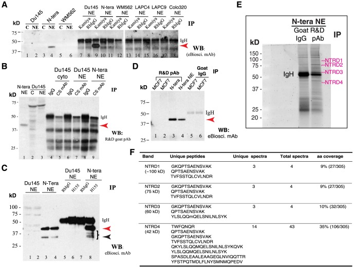 IP and ID studies with 5 anti-Nanog antibodies in NTERA-2 and cancer cells. ( A ) The NE of NTERA-2 and various cancer cells was used in IP with the Kamiya anti-Nanog Rb pAb followed by WB with the eBioscience mAb. Lanes 1-6 were regular WB with either cytosol (C) or NE. Red arrowhead, the 42 kD Nanog band; IgH, IgG heavy chain (∼53 kD). Note that the prominent 42 kD protein band was detected on WB (lane 4) and immunoprecipitated down (lane 9) only in NTERA-2 NE. ( B ) The NTERA-2 NE or Du145 cytosol (cyto) or NE was used in IP with the CS anti-Nanog rabbit mAb followed by WB with the R D goat pAb. Lanes 1-3 were regular WB. Red arrowhead, the 42 kD Nanog band; IgH, IgG heavy chain. Note that the 42 kD Nanog protein was detected on WB (lane 1) and immunoprecipitated down (lane 9) only in NTERA-2 NE. ( C ) The NE of NTERA-2 and Du145 cells was used in IP with the SC anti-Nanog rabbit pAb H155 followed by WB with eBioscience mAb. Lanes 1–4 were regular WB using two independent preparations of Du145 or NTERA-2 NE. Red arrowhead, the 42-kD band; black arrowhead, the 35-kD Nanog band; IgH, IgG heavy chain. Note that the 42-kD protein band was detected on WB (lane 3 and 4) and immunoprecipitated down (lane 8) only in NTERA-2 NE. The right-pointing bracket indicates the cluster of Nanog protein bands below the dominant 42 kD band. ( D ) The NE of NTERA-2 cells and MCF7 cells (two independent preparations) was used in IP with the R D anti-Nanog goat pAb (goat IgG used as the control) followed by WB with the eBioscience mAb. Red arrowhead, the 42 kD Nanog band; IgH, IgG heavy chain. Note that the 42-kD protein band was detected on WB (lane 4; input) and immunoprecipitated down (lane 3) only in NTERA-2 NE. ( E–F ) Nanog protein ID by MALDI-TOF/TOF in NTERA-2 NE following IP using the R D goat pAb. Shown are SYPRO Ruby gel image (E; NTRD1-4 refer to the 4 gel slices cut out for protein elution) and the Nanog peptides recovered from each gel slice (F).