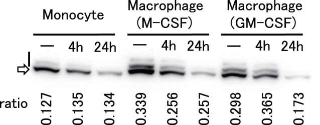 Phosphorylation state of SAMHD1. Monocytes (Monocyte), M-CSF-differentiated macrophages (Macrophage (M-CSF)), and GM-CSF-differentiated macrophages (Macrophage (GM-CSF)) were treated with GH123-Nhe/VSV-G for 2 h and incubated at 37°C for 4 h (4 h) or 24 h (24 h), or mock-treated (−). Cells were lyzed and subjected for SDS-PAGE containing Phos-tag to separate phosphorylated proteins from nonphosphorylated ones. SAMHD1 proteins were detected by anti-SAMHD1 antibody. Upper bands shown by a vertical bar and a lower band shown by an arrow represent phosphorylated and nonphosphorylated SAMHD1, respectively. Ratios of phosphorylated SAMHD1 levels to total SAMHD1 levels (ratio) are shown in vertical numbers.