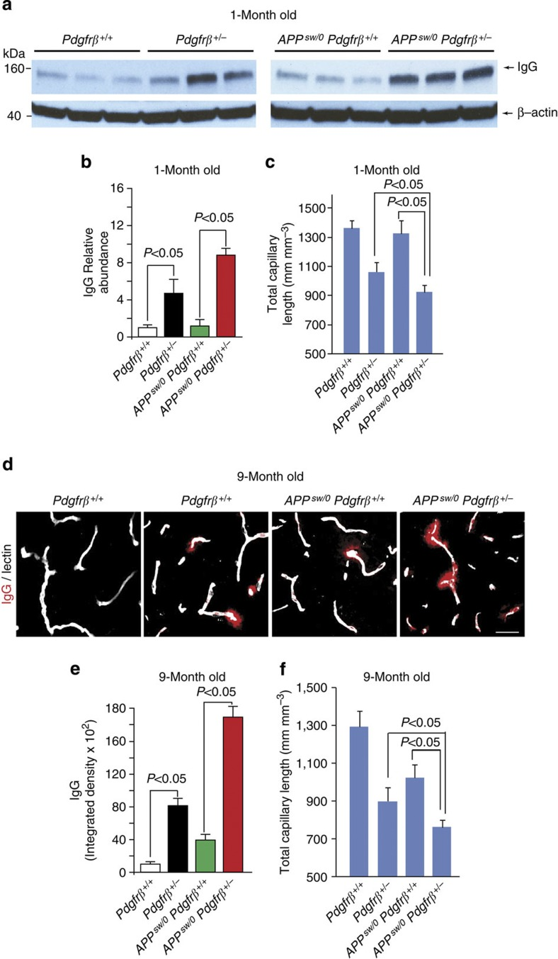 Accelerated blood–brain barrier breakdown and microvascular reductions in pericyte-deficient <t>APP</t> sw/0 Pdgfrβ +/− mice. ( a , b ) Western blot analysis of serum <t>IgG</t> in capillary-depleted cortical homogenates relative to β-actin ( a ) and quantification of IgG extravascular levels ( b ) in 1-month-old Pdgfrβ +/+ , Pdgfrβ +/− , APP sw/0 ; Pdgfrβ +/+ and APP sw/0 ; Pdgfrβ +/− mice. Full-size blots can be found in Supplementary Fig. S5 . ( c ) Total length of lectin-positive capillary profiles in 1-month-old Pdgfrβ +/+ , Pdgfrβ +/− , APP sw/0 ; Pdgfrβ +/+ and APP sw/0 ; Pdgfrβ +/− mice. In b , values are means±s.e.m., n =4 mice per group. In c , values are means±s.e.m., n =6 mice per group. P