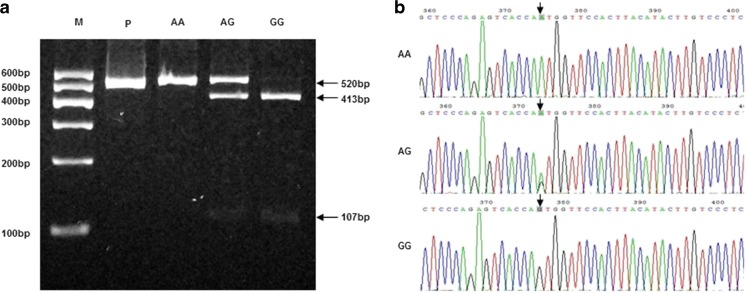 a Electrophoretogram of DNA fragments for Ser680Asn polymorphism after digestion with Bsr I. Homozygote A/A was shown by the band of 520 bp. Homozygote G/G was shown by the bands of 413 bp and 107 bp. Heterozygote A/G was shown by the bands of 520 bp, 413 bp and 107 bp. b DNA sequencing of the Ser680Asn polymorphisms (AA, AG and GG) as indicated by arrows . The lane marked M is the marker of DNA. The lane marked P is the DNA of PCOS without enzyme digestion