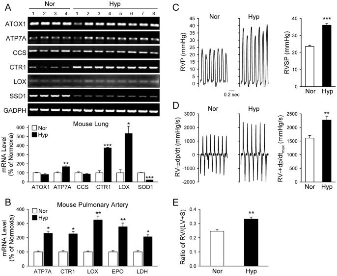 The mRNA expression level of Cu transporters (CTR1 and ATP7A) and lysyl oxidase (LOX) is increased in whole-lung and pulmonary artery (PA) tissues of mice with chronically hypoxia-induced pulmonary hypertension (HPH). Whole lung tissues and isolated PA tissue from normoxic (Nor, 21% O 2 ) and hypoxic (Hyp, 10% O 2 for 5 weeks) mice were homogenized and their mRNA transcripts evaluated by RT-PCR utilizing primers specific for ATOX1, ATP7A, CCS, CTR1, LOX, GAPDH or 18s rRNA (internal controls). A: RT-PCR products from whole-lung tissues were separated on 2% agarose gels (upper panel) and the band intensities quantitated by ImageJ, normalized to intensity of GAPDH, and graphed relative to Nor (n = 4 Nor mouse lungs; n = 8 Hyp mouse lungs). B: PA dissected from Nor and Hyp mice were used for RNA extraction (n = 5) and analyzed by quantitative PCR. Real-time PCR reaction was set with primers specific for the indicated genes. The cycle threshold C(t) values were normalized to 18s rRNA to obtain ΔC(t) , quantified relative to normoxic control for each of the indicated genes (ΔΔC(t)), and graphed as % of normoxic control. C: Representative records of right ventricular pressure (RVP, left panel) and summarized data (mean±SE) showing RV systolic pressure (RVSP) in Nor (n = 6) and Hyp (n = 13) mice. D: Representative records (left panel) and summarized data (right panel, mean±SE) of right ventricular contractility (RV-±dp/dt max ) in Nor and Hyp mice. E: Summarized data (mean±SE) showing the ratio of right ventricle (RV) weight to left ventricle (LV) and septum (S) weight [RV/(LV+S)] in Nor (n = 7) and Hyp (n = 7) mice. * P