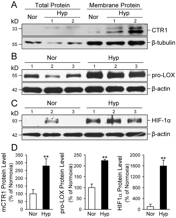 The protein expression level of CTR1, pro-LOX and HIF-1α is increased in whole-lung tissues of mice with HPH. A–C: Western blot analysis of mouse CTR1 (A), pro-LOX (B) and HIF-1α (C) in total and membrane proteins extracted from whole-lung lung tissues of normoxic control mice (Nor, n = 5) and chronically hypoxic (Nor, n = 5) mice. Proteins from Nor and Hyp mouse lungs were solubilized in 3% DDM/1× RIPA buffer and utilized for Western blot analysis using antibodies specific for mouse CTR1, pro-LOX, and HIF-1α. β-actin or β-tubulin was used as a loading control. D: Summarized data (mean±SE) showing protein expression levels of CTR1, pro-LOX and HIF-1α in lungs tissues isolated from Nor and Hyp mice. The band intensity was quantitated with ImageJ software, normalized with respect to the loading control, and then shown relative to control (% of Nor). ** P